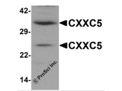 CXXC5 Antibody