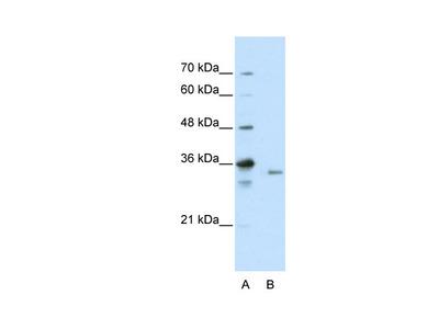 EXOSC3 Antibody
