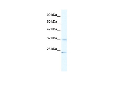 ZNF265 Antibody
