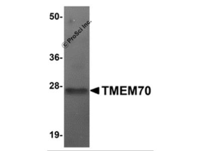 TMEM70 Antibody