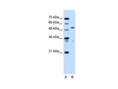 PODXL Antibody