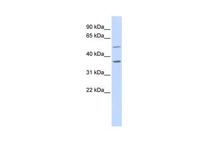 ZADH1 Antibody