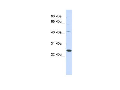 FAM119A Antibody