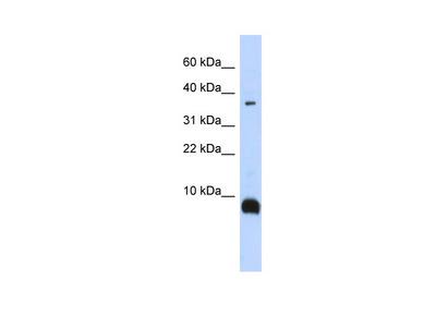 TAC3 Antibody