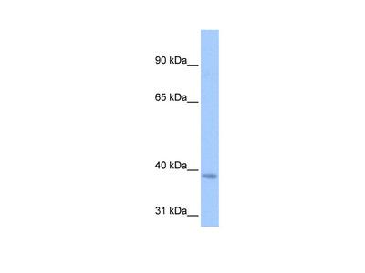 NSUN3 Antibody