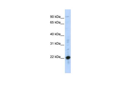 CRIP2 Antibody