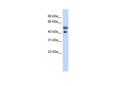 TMOD2 Antibody
