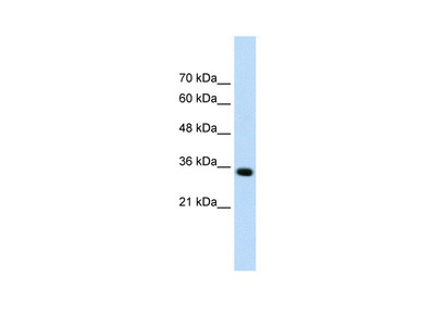 ADAMTS4 Antibody