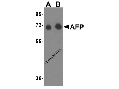 Anti-ATP8B5P Antibody Products | Biocompare com