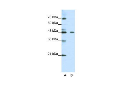 ZNF645 Antibody