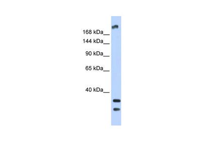 TRPM2 Antibody