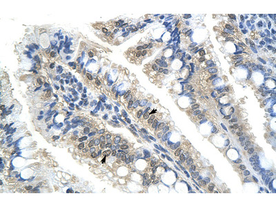 BTBD14B Antibody
