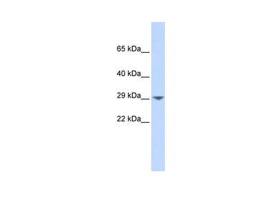 KCNN2 Antibody