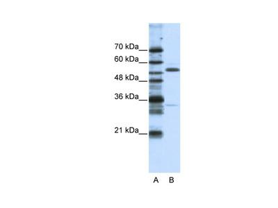ZNF655 Antibody