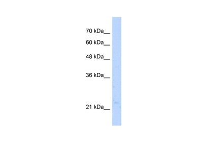 NUDT16L1 Antibody