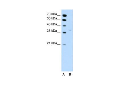 HSD17B1 Antibody