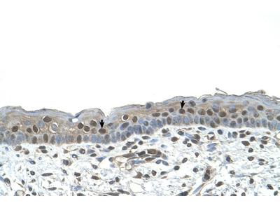 NR2C2 Antibody