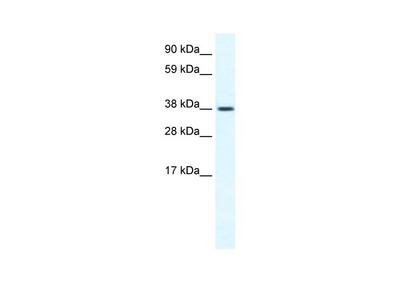 TRPM3 Antibody