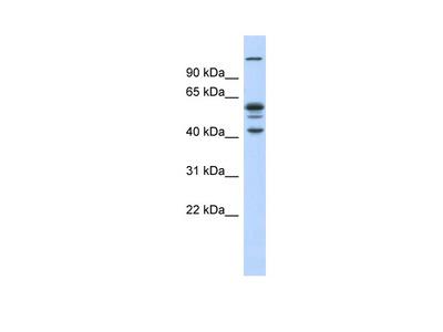 GABPB2 Antibody