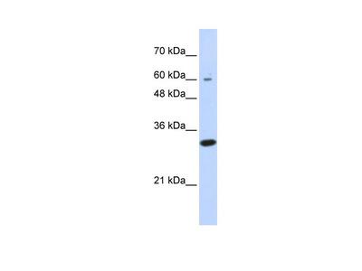 LRRC57 Antibody