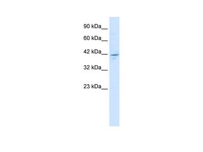 ZNF237 Antibody