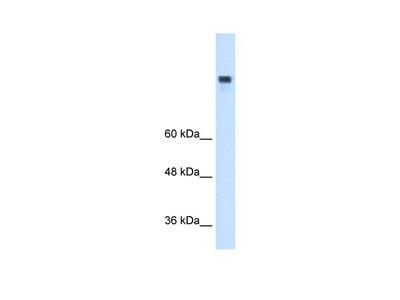 MTTP Antibody