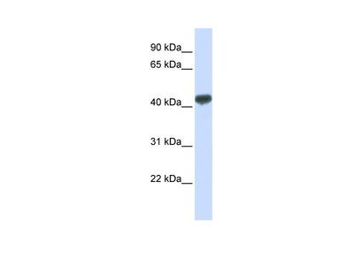 ZRANB2 Antibody