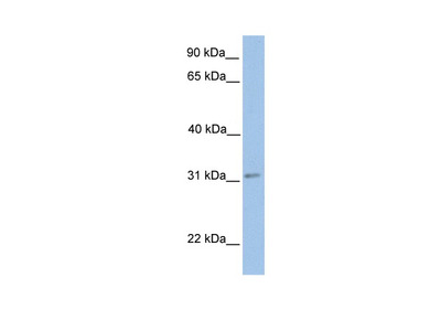 ECHDC2 Antibody