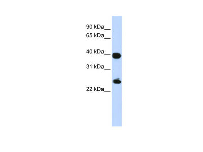 H2AFY Antibody