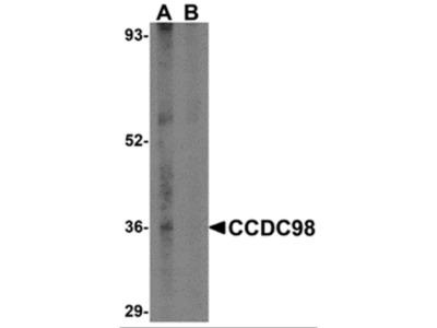 CCDC98 Antibody
