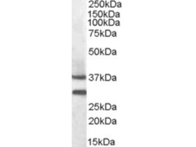 MC5R Antibody