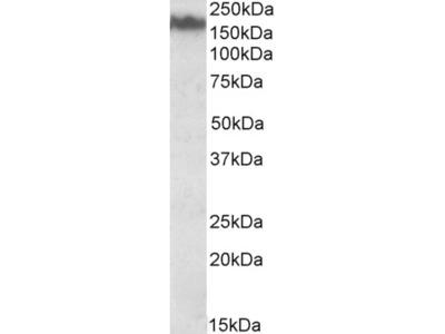 NEFM Antibody