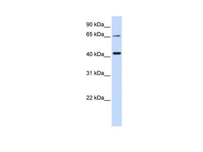 QPCTL Antibody