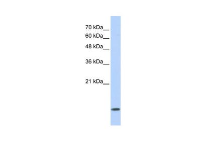 DYNLL1 Antibody