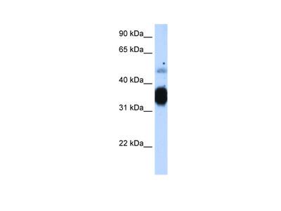 TNNT3 Antibody