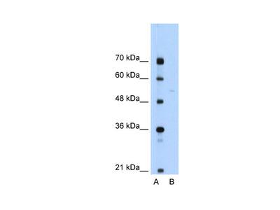 SLA/LP Antibody
