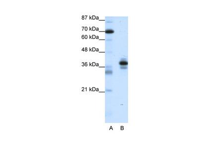 PITX1 Antibody