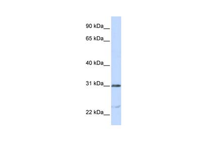 NUSAP1 Antibody