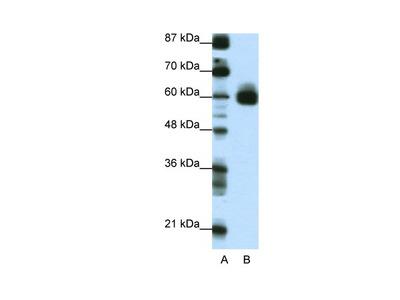 CIR Antibody