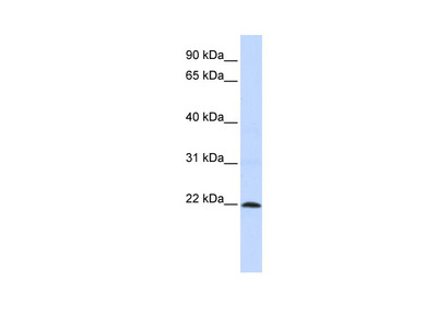 ZNF581 Antibody