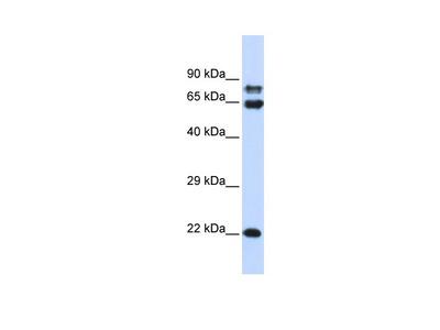 PPP2R1A Antibody
