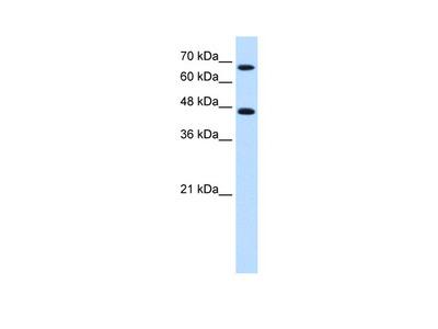 NR4A2 Antibody