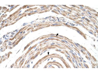 CPSF6 Antibody