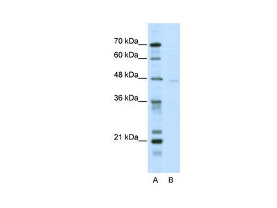 TRIM38 Antibody
