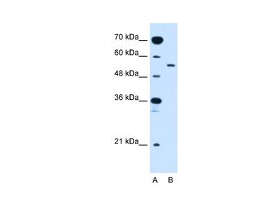 SLC2A10 Antibody