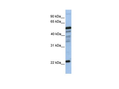 PGDS Antibody