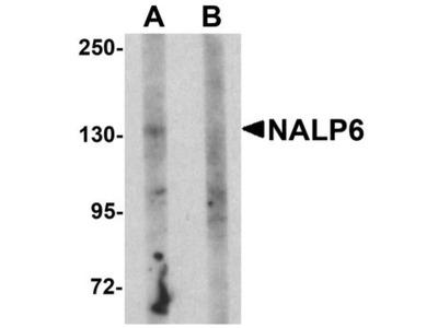 NALP6 / NLRP6 Polyclonal Antibody