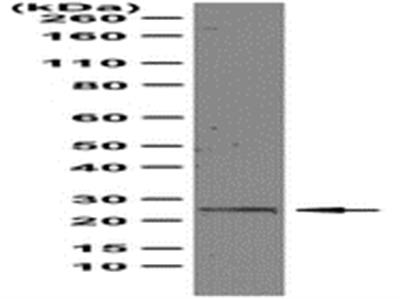 Anti-Rab25, clone 12C3