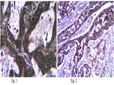 Anti-iNOS/NOS II Antibody, NT