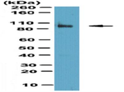 Anti-Fibroblast activation protein alpha (FAP)